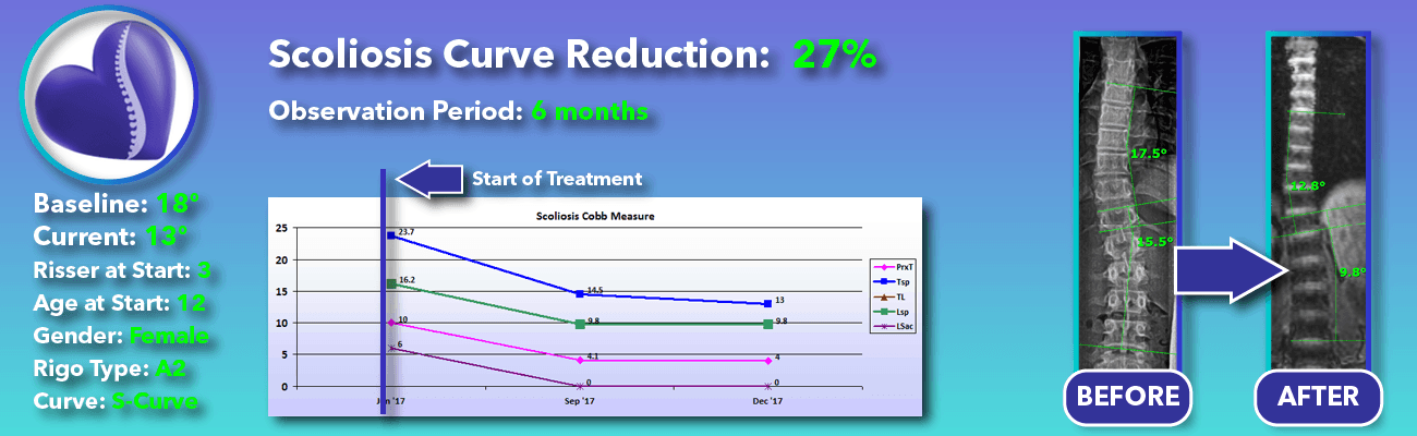 27% non-surgical reduction of scoliosis: 18 degrees reduced to 13 degrees over 6 months