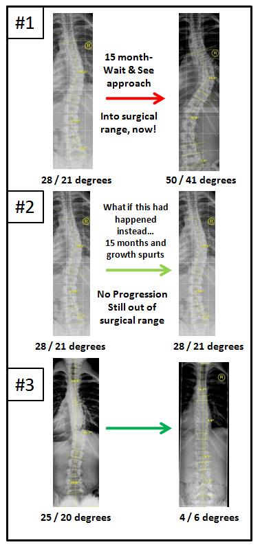 Stop scoliosis curve progression