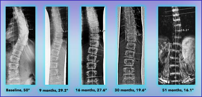 Scoliosis Reduction Progress