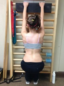 girl doing schroth exercises on bar