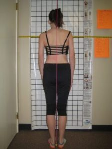 girl having posture assessed