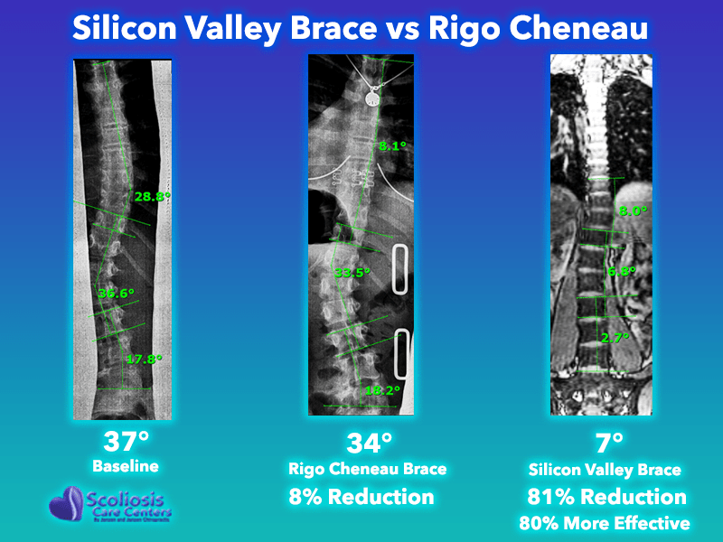 Rigo Cheneau Brace Comparison with Silicon Valley Scoliosis Brace