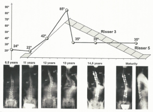 Scoliosis curve progression is correlated with growth spurts