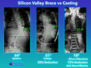 Scoliosis Casting Comparison with Silicon Valley Scoliosis Brace