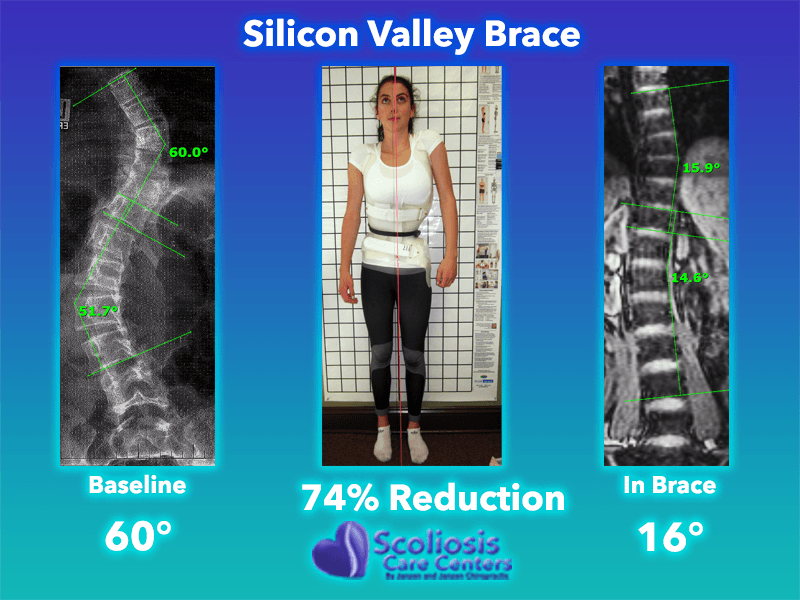 Scoliosis Brace - Back Brace for Scoliosis - Silicon Valley Brace 74% Reduction