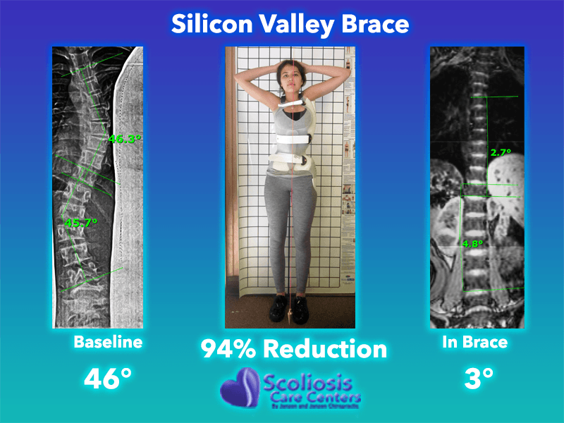 Scoliosis Brace - Back Brace for Scoliosis - Silicon Valley Brace 94% Reduction