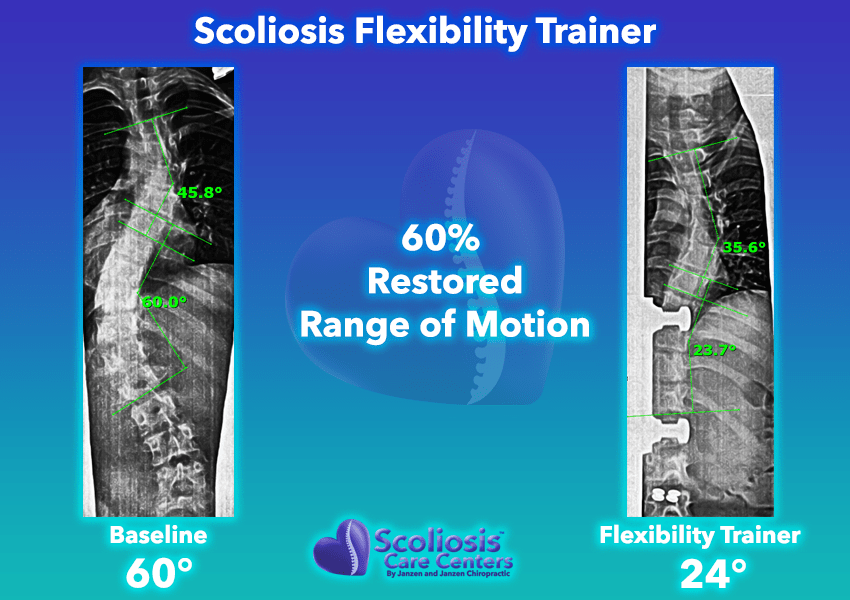 Scoliosis Flexibility Trainer 60% Restored range of motion