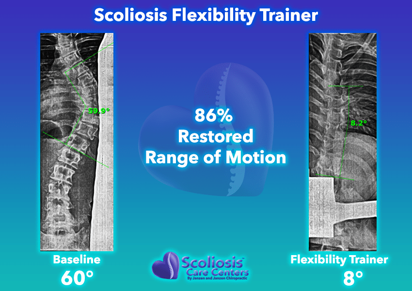 Scoliosis Flexibility Trainer 86% Restored range of motion