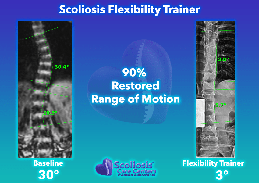 Scoliosis Flexibility Trainer 90% Restored range of motion