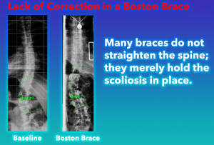 The Boston brace does not correct the scoliosis, rather, it just holds the curve stagnant at best