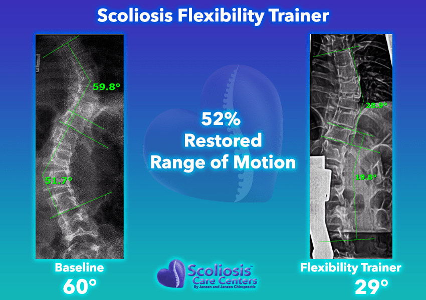 Scoliosis Flexibility Trainer 52% Restored range of motion