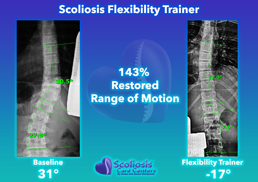 Scoliosis Flexibility Trainer 143% Restored range of motion