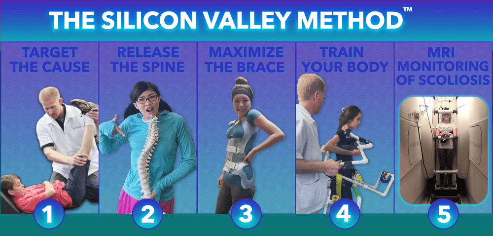 The SILICON VALLEY treatment METHOD at Scoliosis Care Centers