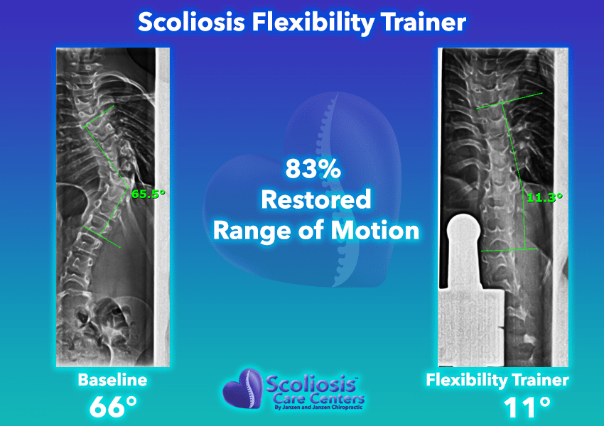 Scoliosis Flexibility Trainer 83% Restored range of motion