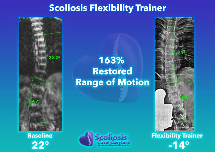 Scoliosis Flexibility Trainer 163% Restored range of motion