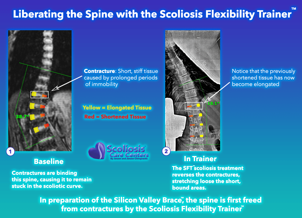 Liberating the Spine with the Scoliosis Flexibility Trainer, example of hyper correction of spinal contractures