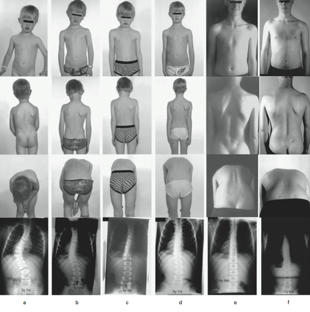 proof that a scoliosis brace used for a duration will prevent and reverse a scoliosis curve