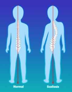 What is scoliosis graphic image