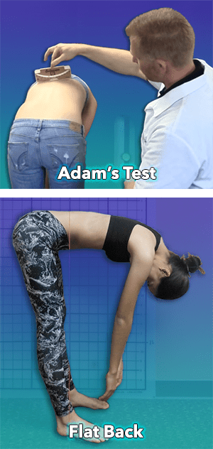 Adams forward bending test and flat back