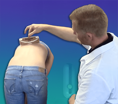Adams forward bending test showing rib hump with scoliometer