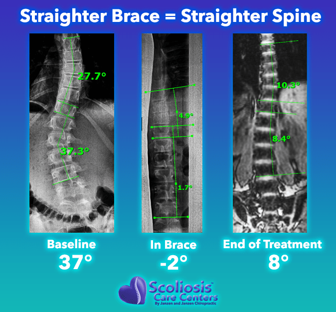 The straighter the scoliosis brace, the straighter the spine will be outside of the brace