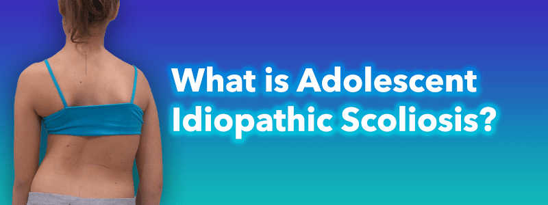 What is Adolescent  Idiopathic Scoliosis?