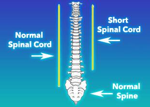 normal vs short spinal cord nerve tension illustration