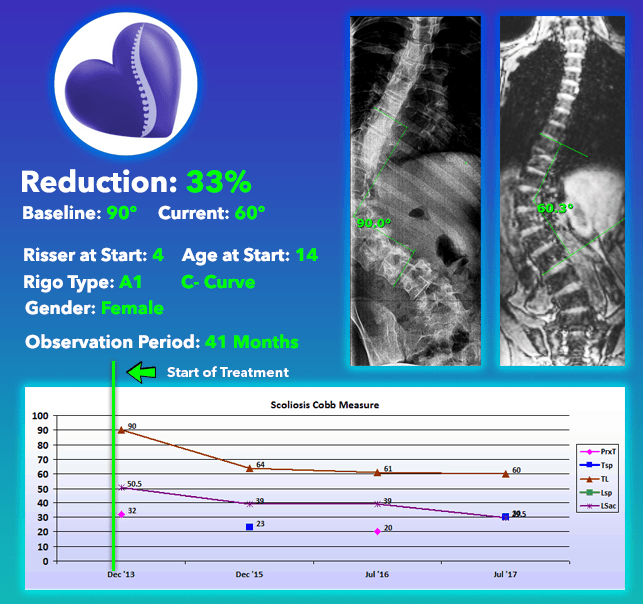 33% Scoliosis Curve Reduction using Nonsurgical Comprehensive Treatment