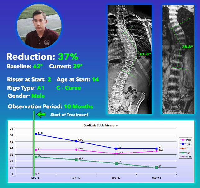 37% Scoliosis Curve Reduction from 62 Degrees scoliosis treatment without surgery