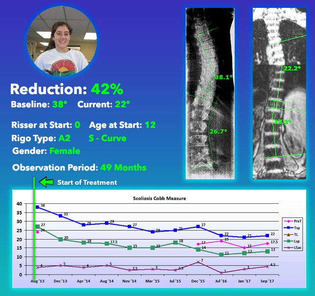 42% Scoliosis Curve Reduction using Nonsurgical Comprehensive Treatment