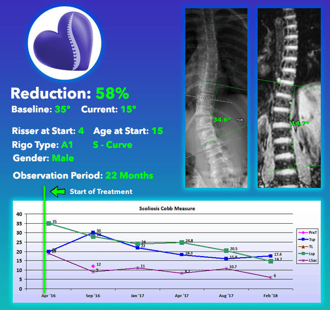 58% Scoliosis Curve Reduction using Nonsurgical Comprehensive Treatment at Scoliosis Care Centers