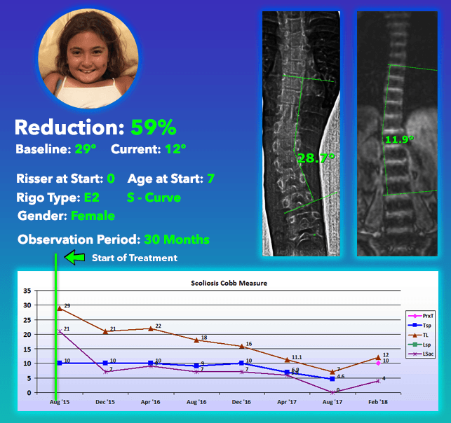 59% Scoliosis Curve Reduction using Nonsurgical Comprehensive Treatment