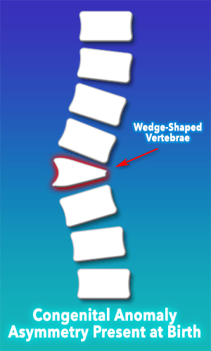 Scoliosis Anatomical Anomaly - wedge shaped vertebrae