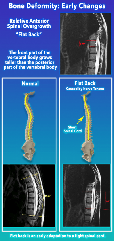 Bone Deformity Early Stages - Flat back vs Normal