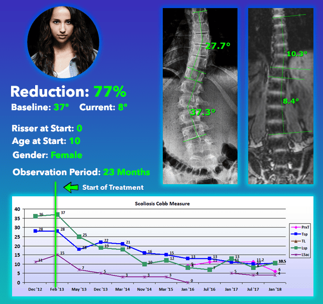Moderate scoliosis cured with brace 77% Reduction