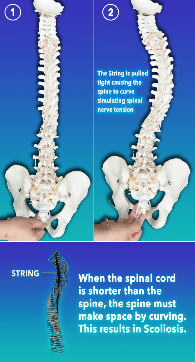 Scoliosis nerve tension example