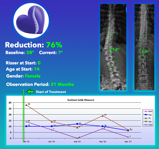 Scoliosis Cure with brace and no surgery 76% Reduction