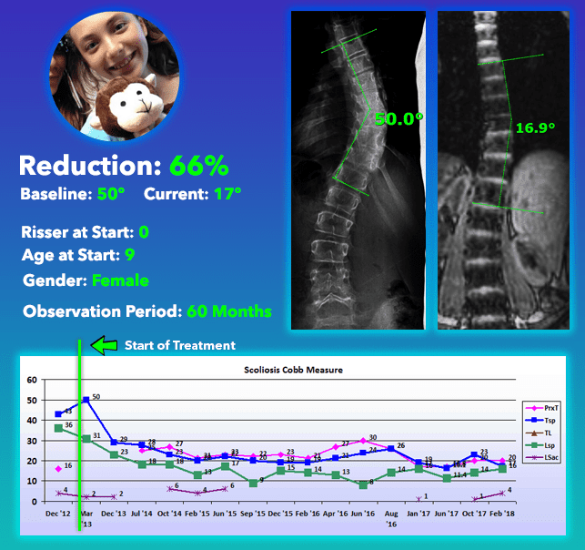Scoliosis Curve Reduction Treatment Results 66% Reduction