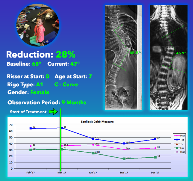 Scoliosis NonSurgical Treatment Results - 28% Reduction