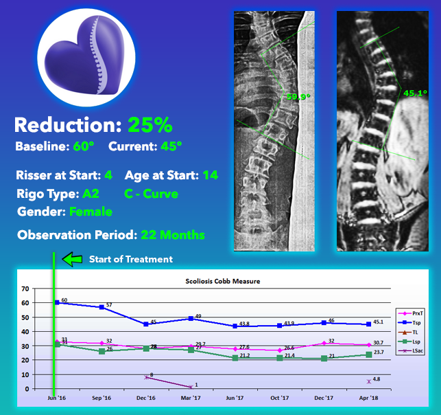 Scoliosis Nonsurgical Treatment Results - 25% Reduction from a 60 degree curve at Risser 4