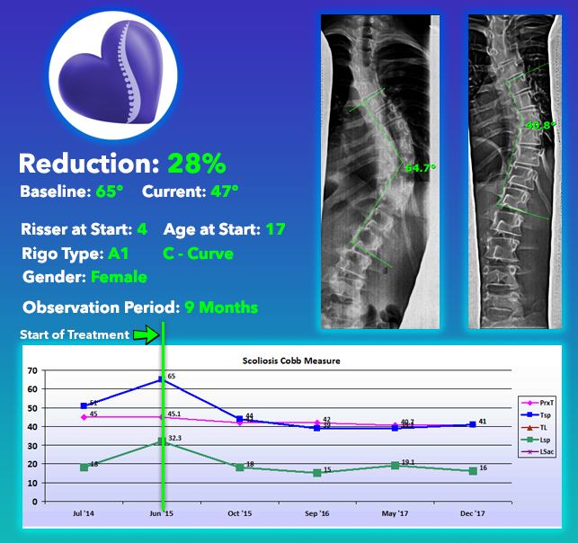Scoliosis Nonsurgical Treatment Results using Silicon Valley Method - 28% Reduction