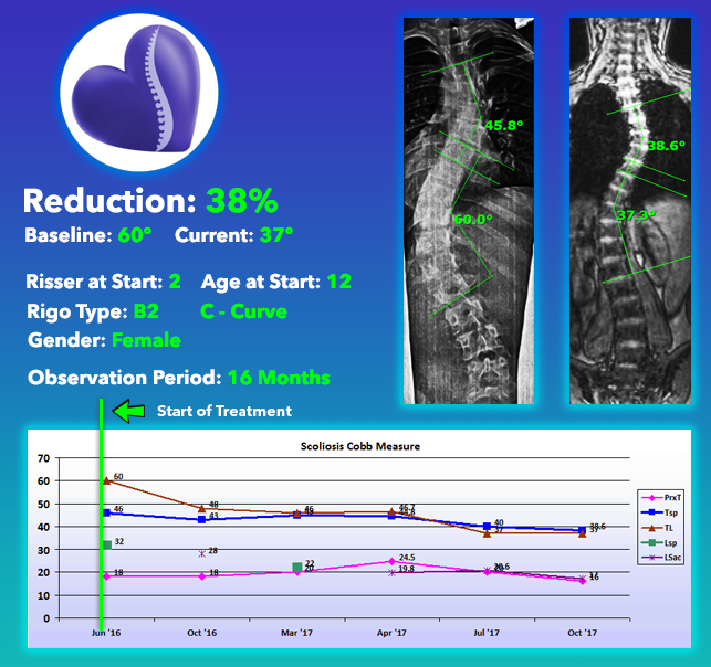 Scoliosis Treatment Results 38% Reduction