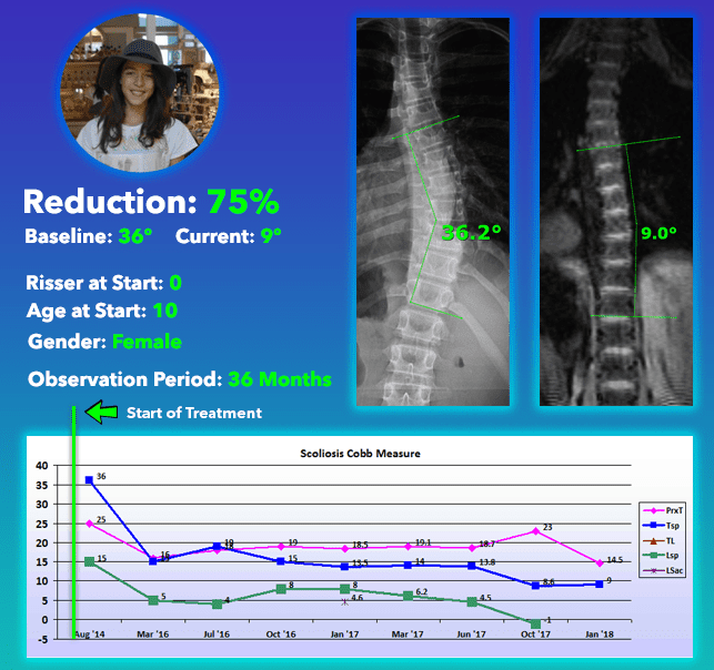 Scoliosis treatment cure without scoliosis surgery 75% Reduction