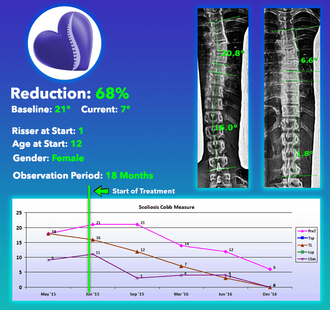Scoliosis treatment results cure with no surgery 68% curve Reduction