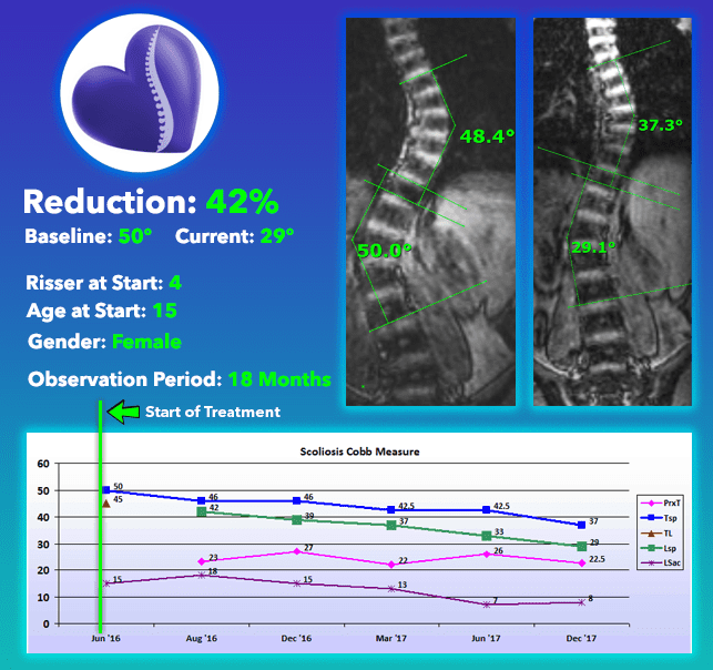 Severe scoliosis treatment no surgery 42% Reduction