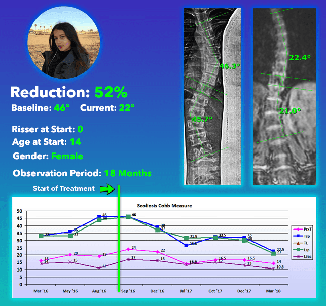 Severe scoliosis treatment results no surgery 52% Reduction