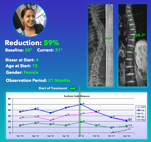 Straighten scoliosis without surgery treatment results 59% Reduction