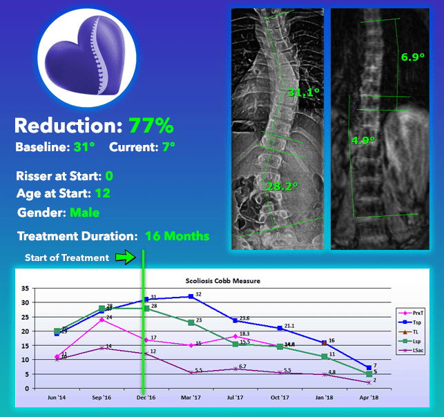 brace treatment cure with out scoliosis surgery 77% curve Reduction