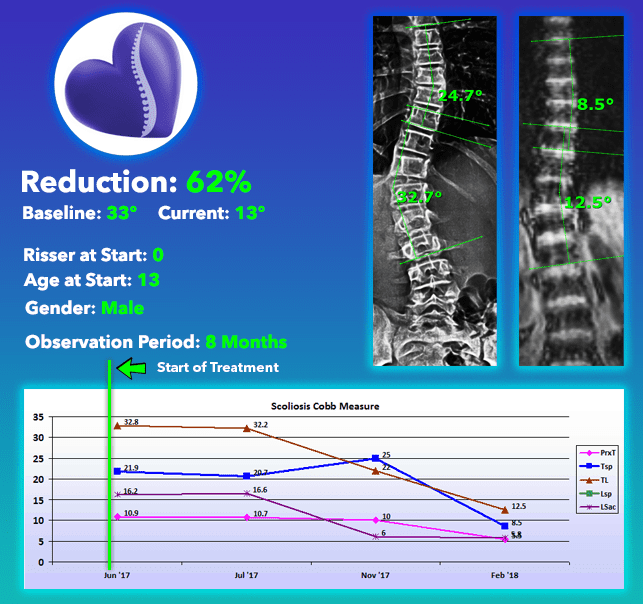 scoliosis cure with nonsurgical scoliosis treatment 62% Reduction