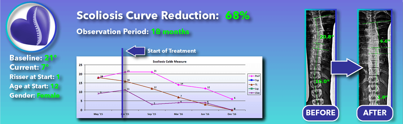 68% non-surgical reduction of scoliosis: 21 degrees reduced to 7 degrees over 18 months